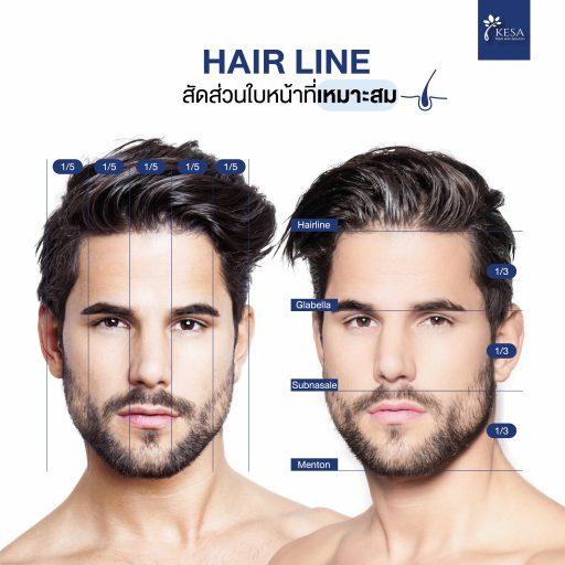 Hairline สัดส่วนที่เหมาะสม